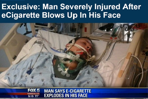 James-Lauria-e-cigarette-explodes-in-his-face